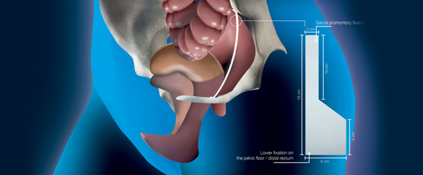 Cellis Rectropexy