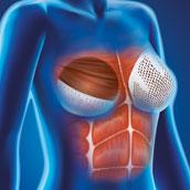 Cellis Breast Pocket